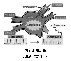 心房細動(1)